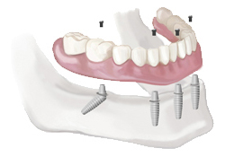 teeth-img1-box