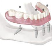 prothese dentaire sur implants